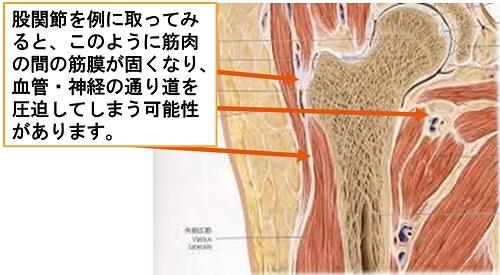 股関節のイラスト