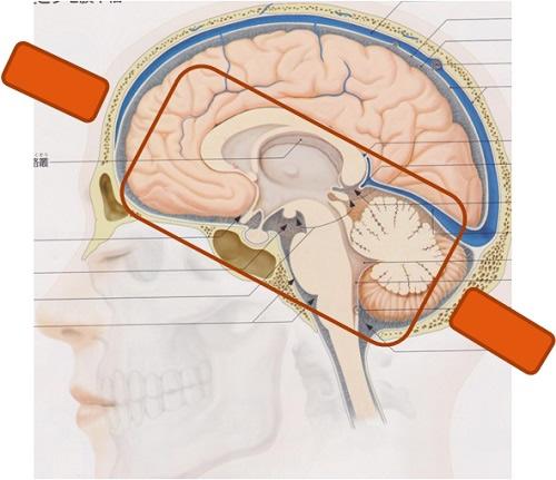 頭の断面図